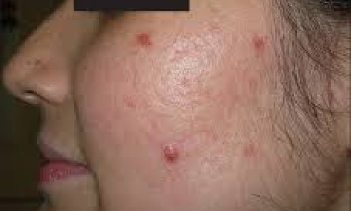 Hirsutism & Acne – Simple but unresolved?