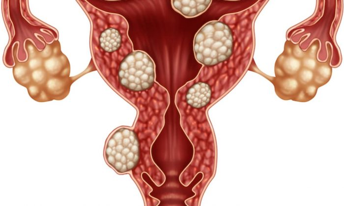 Options for treating fibroids